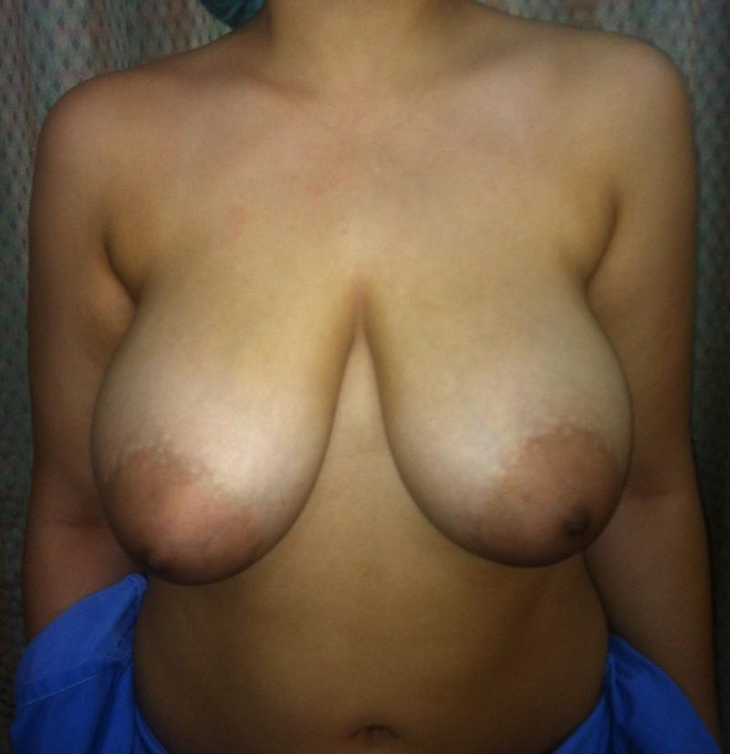 Breast Reduction Egypt, Breast Lift, Mastopexy, Areola Reduction, Cosmetic Surge