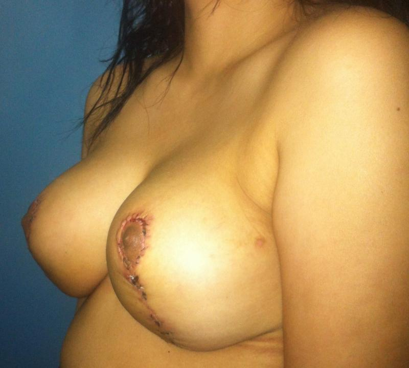 Best Plastic Surgery Egypt, Breast Lift Reduction, Breast Mastopexy, Areola Bcup
