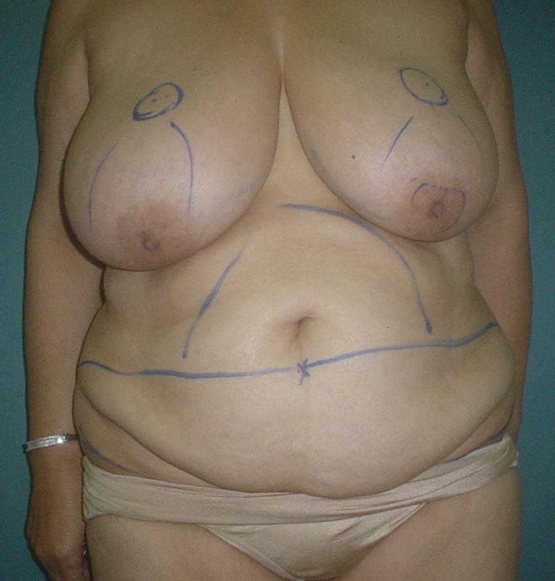 Plastic Surgery Egypt, Abdominoplasty, Tummy Tuck, Breast Reduction, Mastopexy