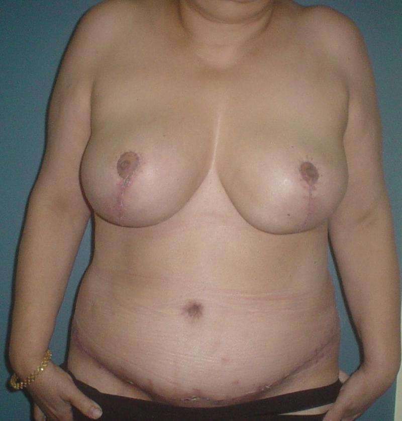 Cosmetic Surgery Egypt, Abdominoplasty, Tummy Tuck, Breast Reduction, Mastopexy