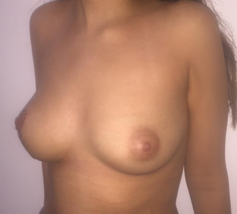 Breast Reduction Lift, Mastopexy, Nipple areola, Reduction mammoplasty, cosmetic