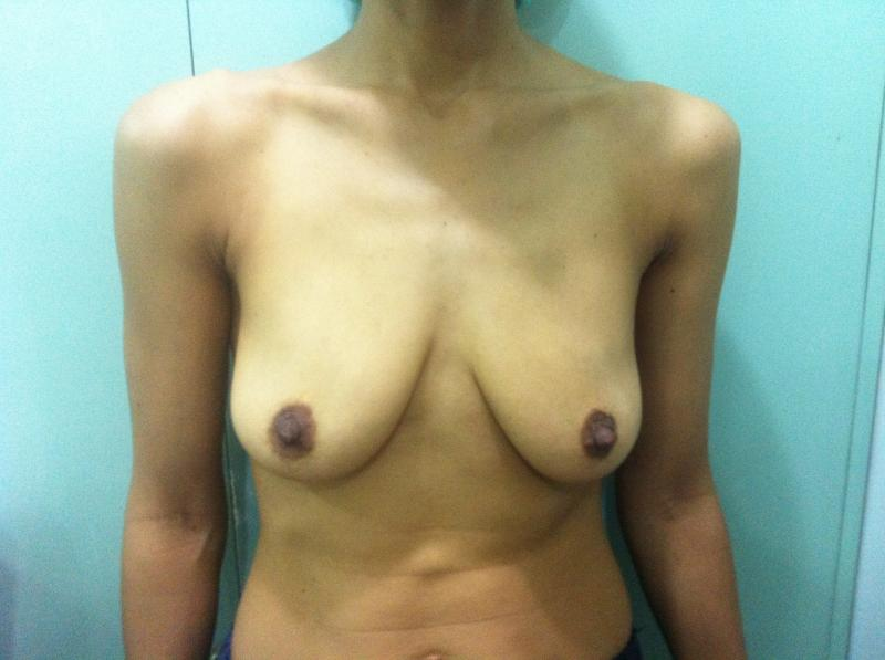 Breast Augmentation Ptosis Egypt, Breast Lift Egypt, Mastopexy, Cosmetic Surgery