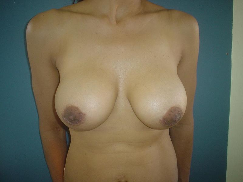 Breast Augmentation Ptosis Egypt, Breast Lift Egypt, Mastopexy, Plastic Surgery