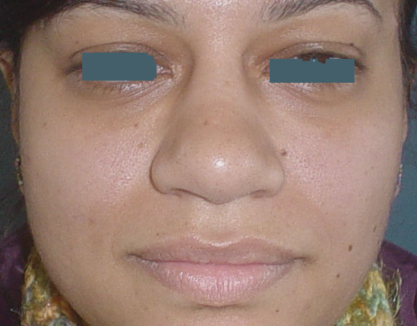 Best Plastic Surgeon Egypt, Nose Hump Egypt, Nose boxy tip Egypt, Rhinoplasty