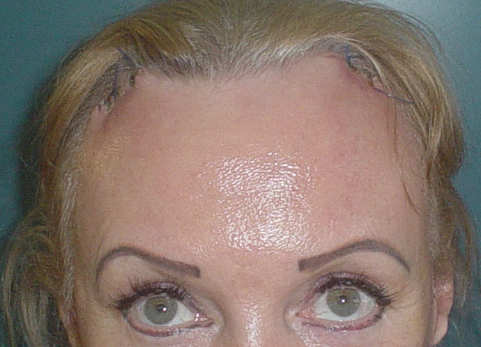 Forehead Reduction, Forehead Lift, Face Laser, Face Lift, Best Cosmetic Surgery