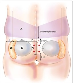 Butt Implants and Brazilian Butt Lift, Cosmetic Butt Enlargement, Hip Enlargemen