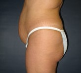 Brazilian Butt Lift, Butt Augmentation, Butt Enlargement, Fat injection, Plastic
