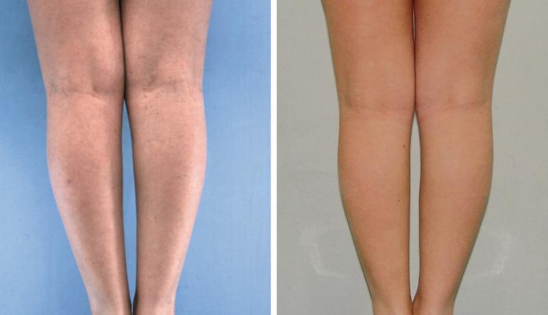 Plastic Surgery in Egypt Fat Liposuction calf lift implant  tuck