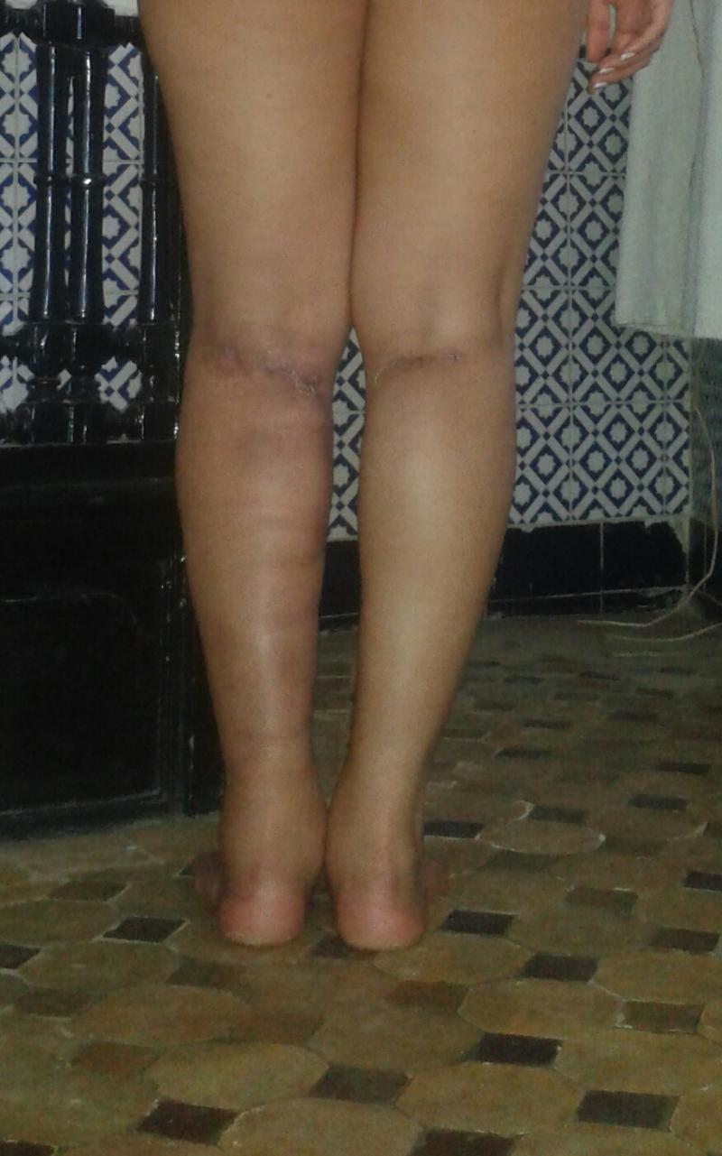 Plastic Surgery Egypt, Calf Implants, Leg cosmetics, Silicone implants, Cosmetic