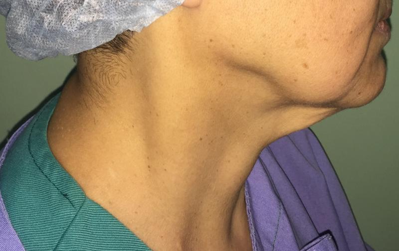 Best Plastic Surgery Egypt, Neck Lift, Neck Liposuction, Neck Laser Liposuction,