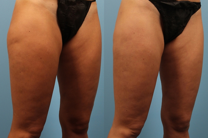 Cellulite in Hips, Cellulite in Thighs, Stem Cells, Best PlasticCosmetic surgery