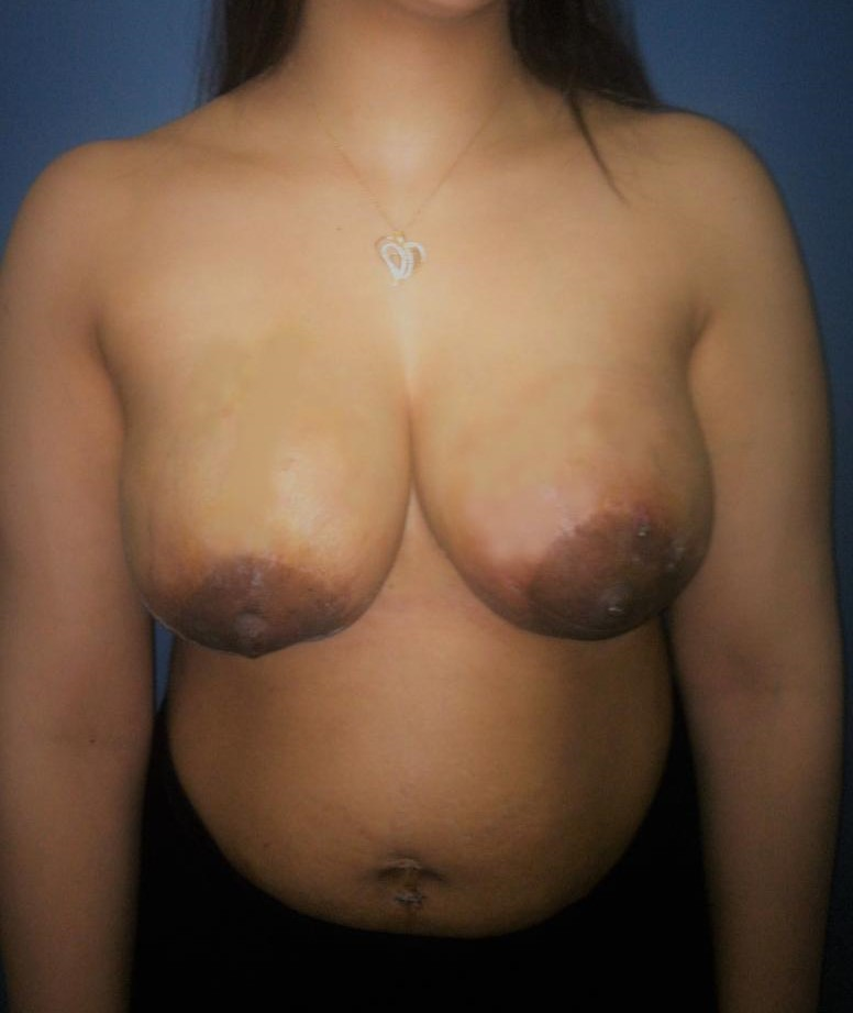 Breast Enlargement and Lift, Augmentation Mastopexy, Best Cosmetic Surgery Egypt