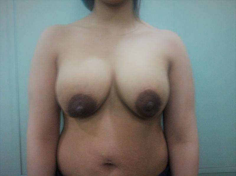 Breast Enlargement and Lift, Fat Injection, Liposucti, Best Plastic Surgery Egyp