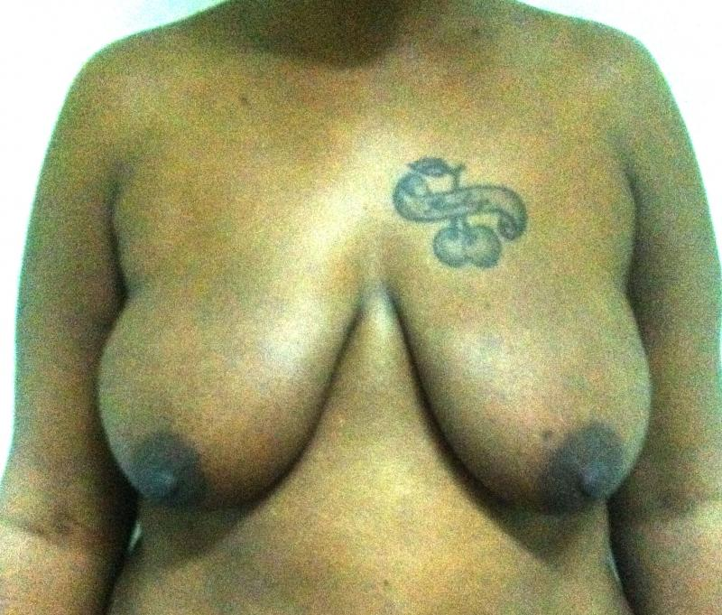 Breast Lift Egypt, Breast Reduction Egypt, Mastopexy Egypt, Plastic Surgery egyp