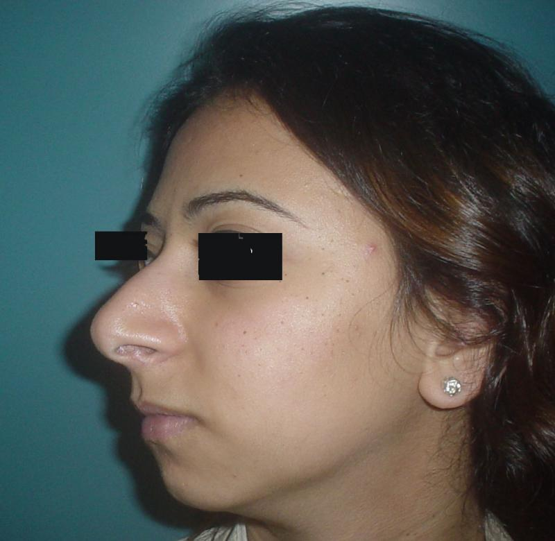 Chin Implants Egypt, Cheek Implants Egypt, Best Plastic Surgery Egypt, Rhinoplas