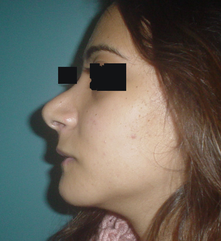 Chin Implants Egypt, Cheek Implants Egypt, Best Cosmetic Surgery Egypt, Nose job