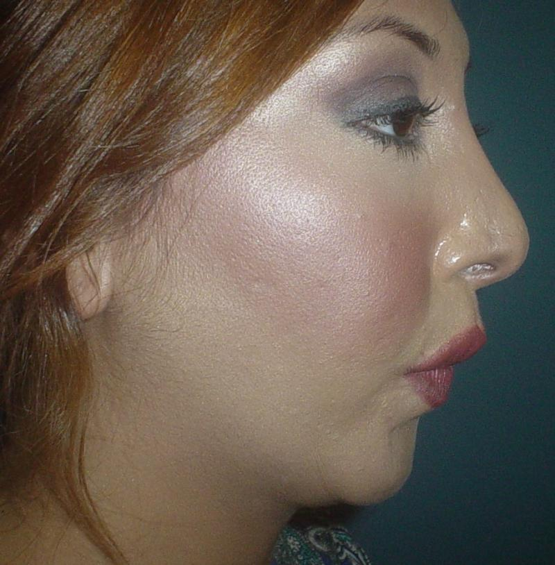 Best Cosmetic Surgeon, Chin Advancement, Chin Implant, Nose Job, Rhinoplasty