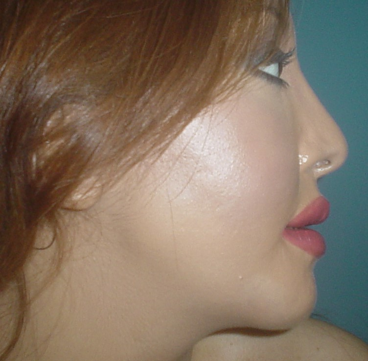 Best Plastic Surgeon, Chin Advancement, Chin Implant, Nose Job, Rhinoplasty