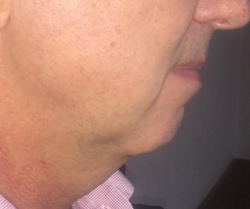 Chin Implants, Medpore Chin Implants, Chin Protrusion, Jaw Line Cosmetic Surgery