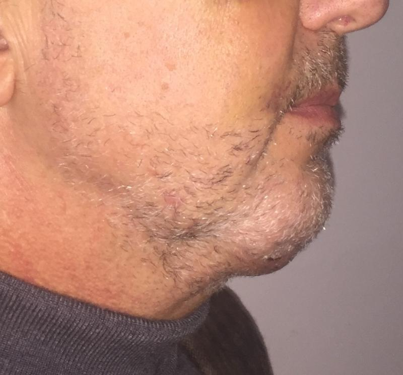 Chin Implants, Medpore Chin Implants, Chin Protrusion, Jaw Line Plastic Surgery