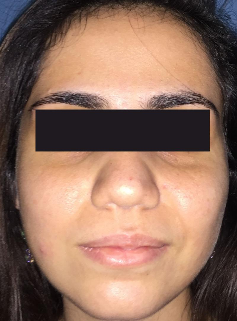 Rhinoplasty Egypt, Nose Job, Nose Tip, Boxy tip, Best Cosmetic Surgery, Nose