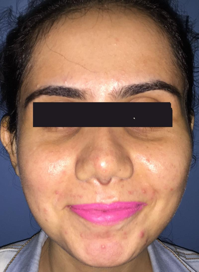 Rhinoplasty Egypt, Nose Job, Nose Tip, Boxy tip, Best Plastic Surgery, Nose open