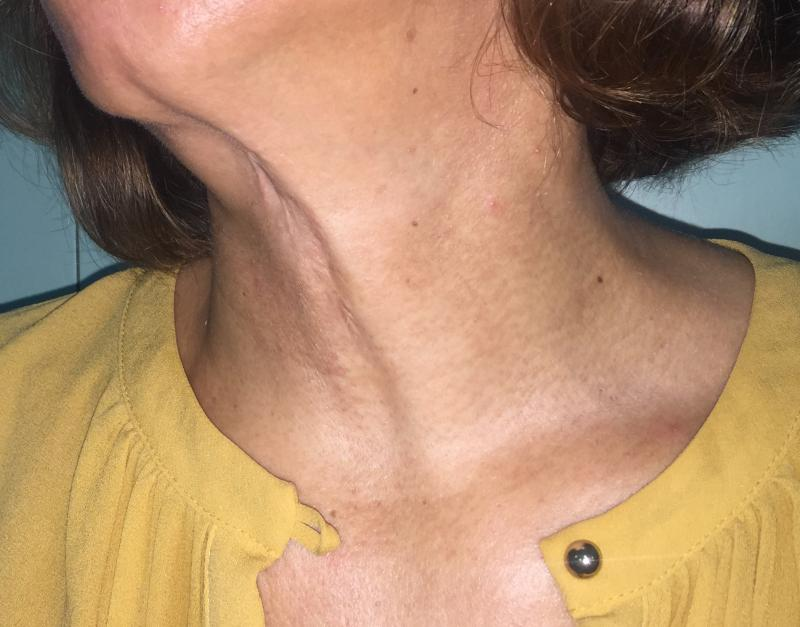 Neck Lift, Neck liposuction, Laser Liposuctio, Neck Contour, Best Cosmetic Surge