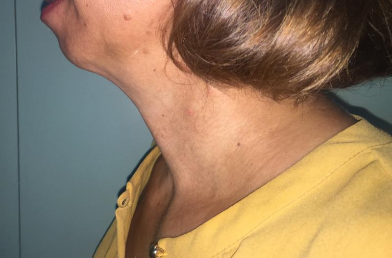 Neck Lift, Neck liposuction, Laser Liposuctio, Neck Contour, Best Plastic Surger