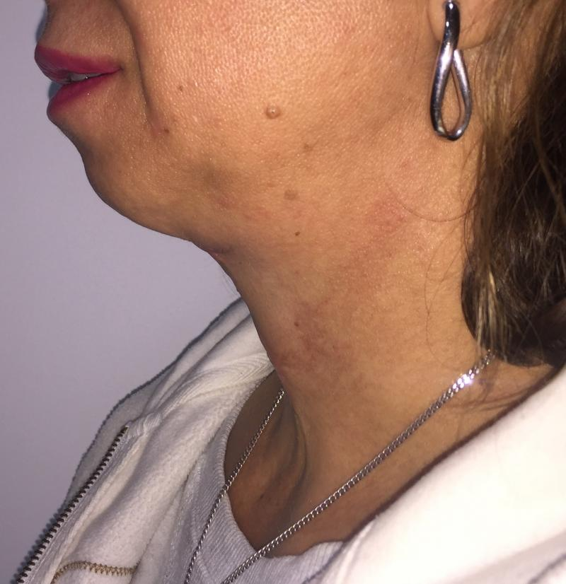 Neck Lift, Neck liposuction, Vaser Liposuctio, Neck Contour, Best Plastic Surger