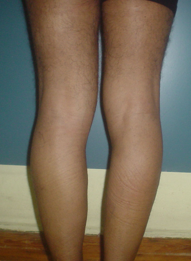 Plastic Surgery Egypt,Calf Augmentation,Calf Implants,Fat Injection,Leg cosmetic