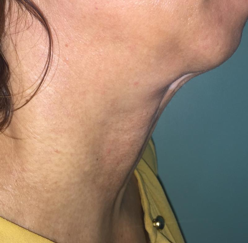 Neck Lift, Neck liposuction, platyzmal bands, Laser Liposuction, Best Cosmetic