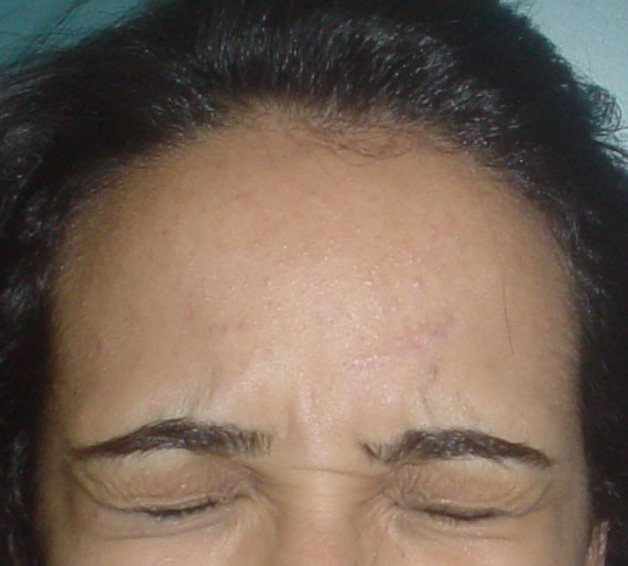 Plastic Surgery Egypt, Aesthetic Surgery, Forehead Scar, Stem Cells, Botox