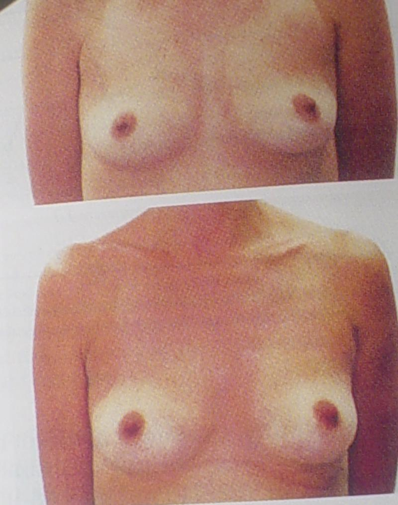 Plastic Surgery Egypt, Breast Augmentation, Stem Cells, Cosmetic Surgery Egypt