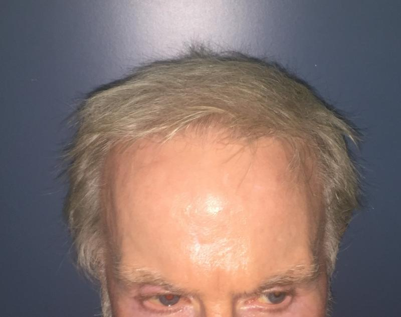 Hair transplantation. FUE, DHI, Follicular Unit Extraction, Male Alopecia bald