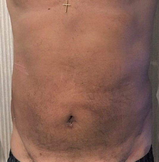 Vaser Liposuction, 4D Lipocontouring, Love Handle Liposuction, Cosmetic Surgery