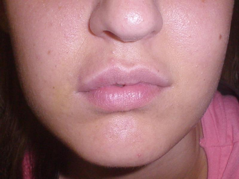 Small Lip, Lip Filler, Juvederm, Nasolabial Surgery, Best Plastic Surgery