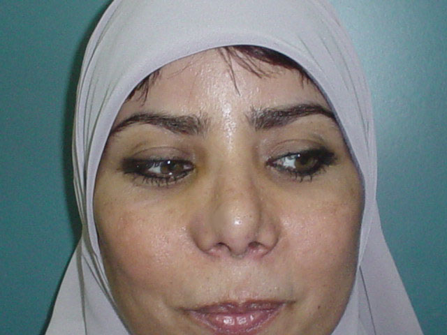 Cosmetic Surgery in Egypt, Secondary Nose surgery, Secondary tip Rhinoplasty,