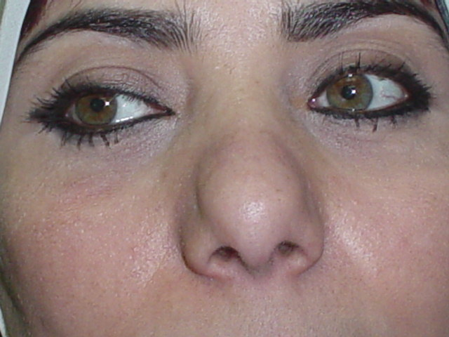 Plastic Surgery in Egypt, Secondary Nose surgery, Secondary tip Rhinoplasty,