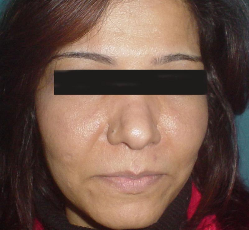 Cosmetic surgery Egypt,fat Injection,Cheek Implants,Laser Liposuction,Aesthetic