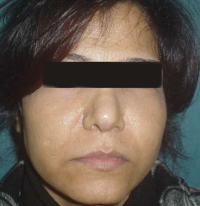 Cosmetic Surgery in Egypt,Cheek implants,Laser Liposuction,Fat Injection,Plastic