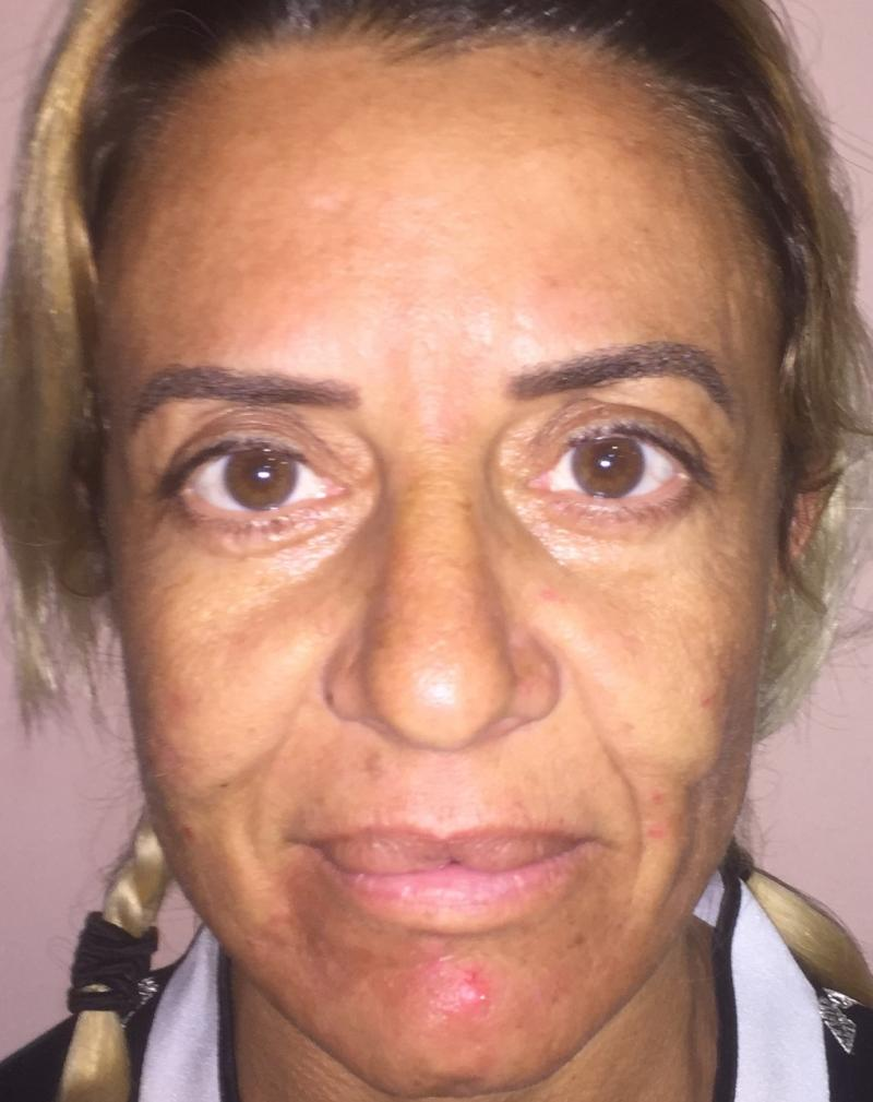 Face Lift, Neck Lift, Brow Lift, Midface Lift, Eyelid Lift, Fat Injection, Bleph