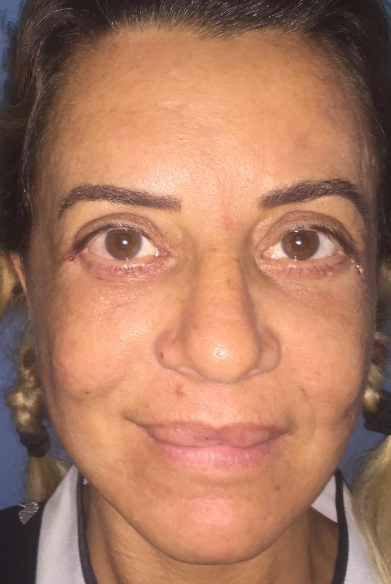 Face Lift, Neck Lift, Brow Lift, Eyelid Lift, Fat Injection, Blepharoplasty