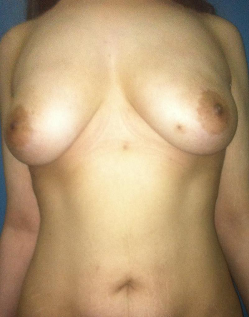 Fat Injection Breast, Breast Augmentation Egypt, Fat Breast Enhancement, Plastic