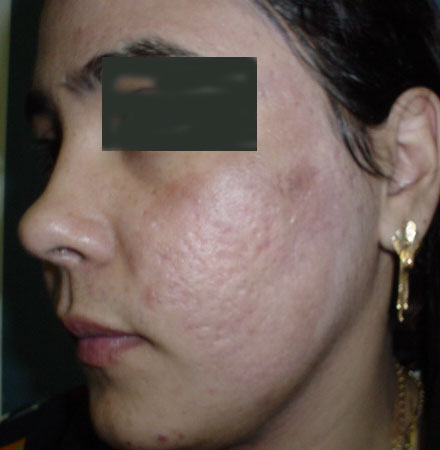 Acne scar laser Egypt cosmetic surgery Fractional Erbium CO2