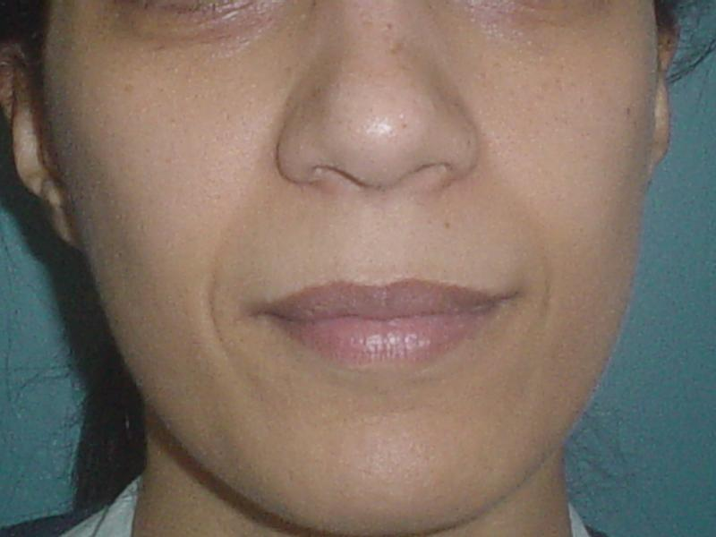 Best Cosmetic surgery in Egypt, Filler, Restylane, Lip, Nasolabial crease