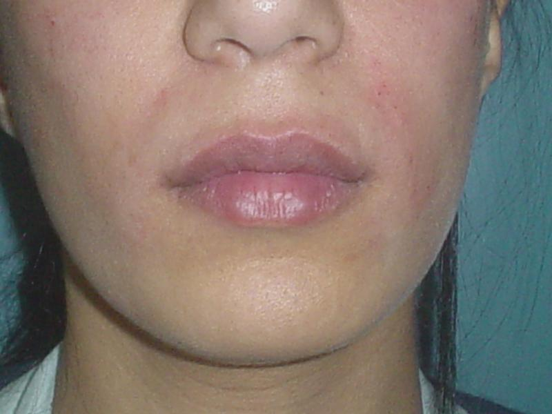 Best Plastic surgery in Egypt, Filler, Botox, Lip, Nasolabial crease, Juvederm