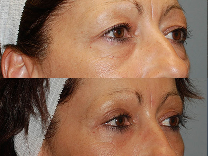 Brow Lift, Forehead Lift, Forehead Wrinkles, Face Lift, Endotyne