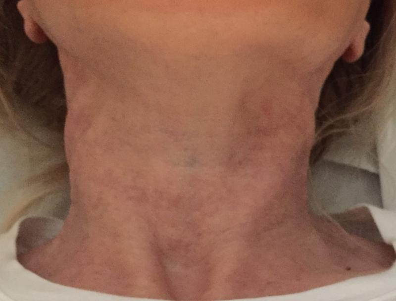 Neck Laser, Neck Fractional Laser, Neck Wrikles, Best Plastic Surgeon, Neck Lift