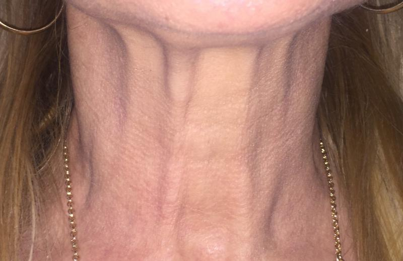 Neck Laser, Neck Fractional Laser, Neck Wrikles, Best Cosmetic Surgeon, Neck Lif