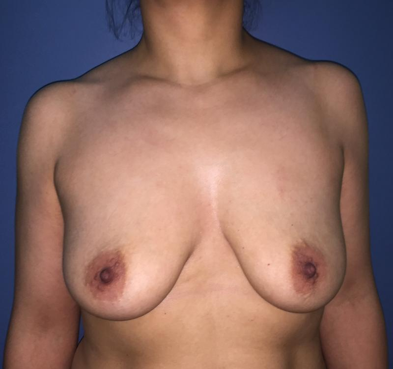 Breast Lift Mastopexy, Breast Augmentation Enlargement, Best Cosmetic Surgery
